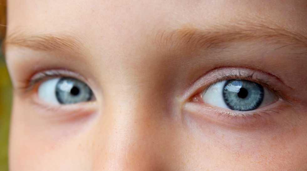 infezione oculare chara